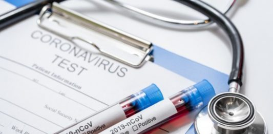 Korsel Ekspor Alat Tes Virus Jadi Cerminan Islam Tolong Menolong